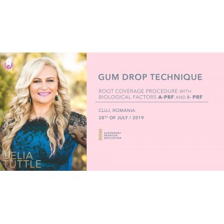 Gum Drop Technique 28.07.2019